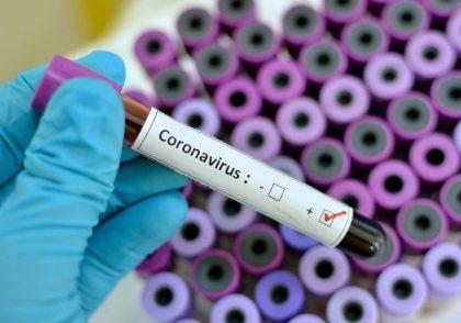 داروی کنترل کرونا در ایران وجود دارد | کودکان هم کرونا میگیرند | داروی قطعی ویروس کرونا در ایران | داروی گیاهی درمان کرونا بر روی بیماران جواب داد ؟ | درمان کرونا یافت شد ؟ | درمان کرونا با زعفران | درمان کرونا زردچوبه | درمان کرونا دارچین | درمان کرونا زنجبیل | درمان کرونا فلفل سیاه | درمان کرونا با عسل و آبلیمو و ۱۰ باور نادرست و غیرعلمی در مورد ویروس کرونا